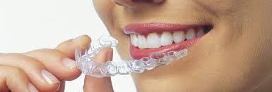 invisalign dentista